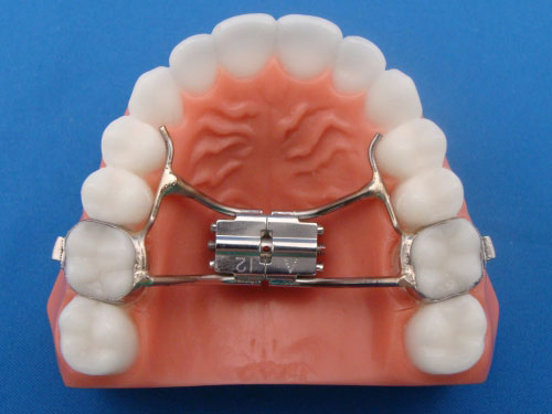 Specialty Appliances Orthodontic Laboratory Categories