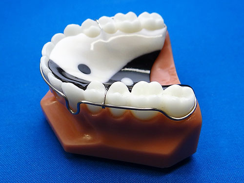 Specialty Appliances Orthodontic Laboratory Appliance